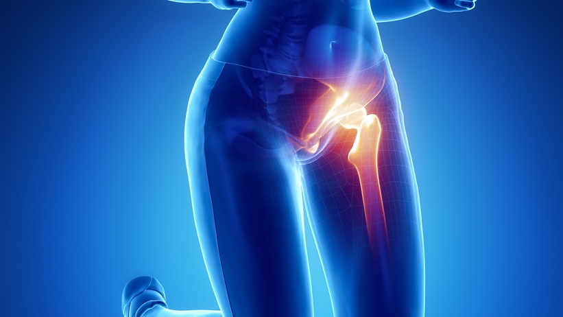 A csípőfájdalom három fő oka - HáziPatika - Jobb oldali csípő feletti fájdalom