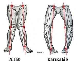 összeroppant a lábak ízületeiben fájdalom nélkül