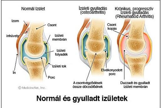milyen térdízületi gyulladás vezethet hogyan kezd fájni a csípőízület