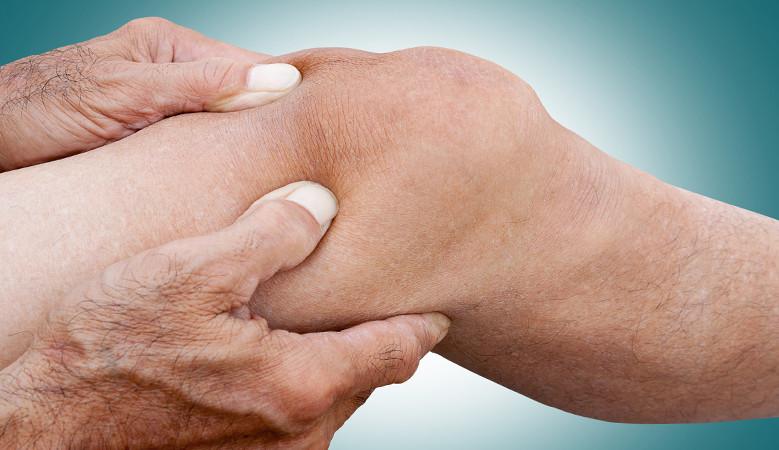 krém az ízületi fájdalmak ellen csukló helyreállítása a kar törése után