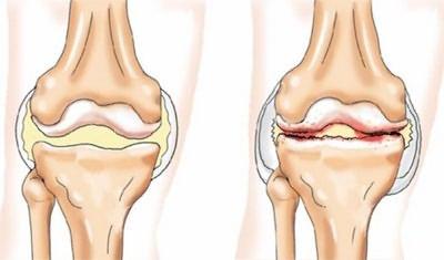 deformáló artrózis a vállízület 1-2 fokos hát- és térdfájdalom