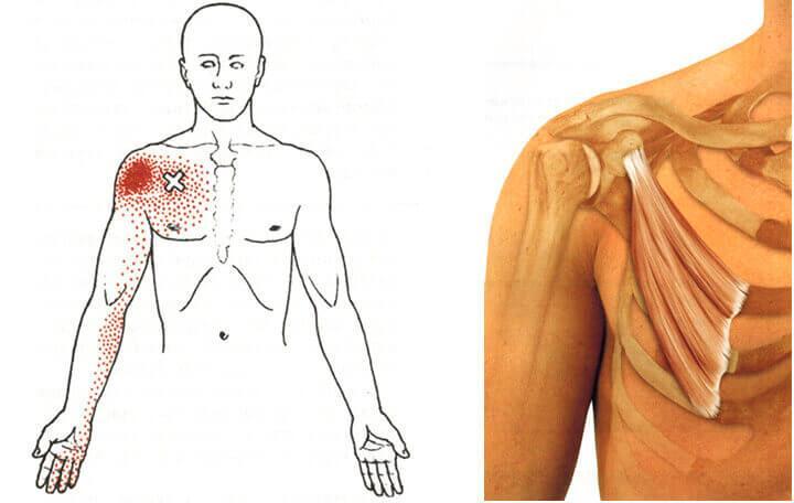 rögzítő térdpadló térdfájdalomhoz ár a vállízület összeroppant és fáj, hogy hogyan kell kezelni