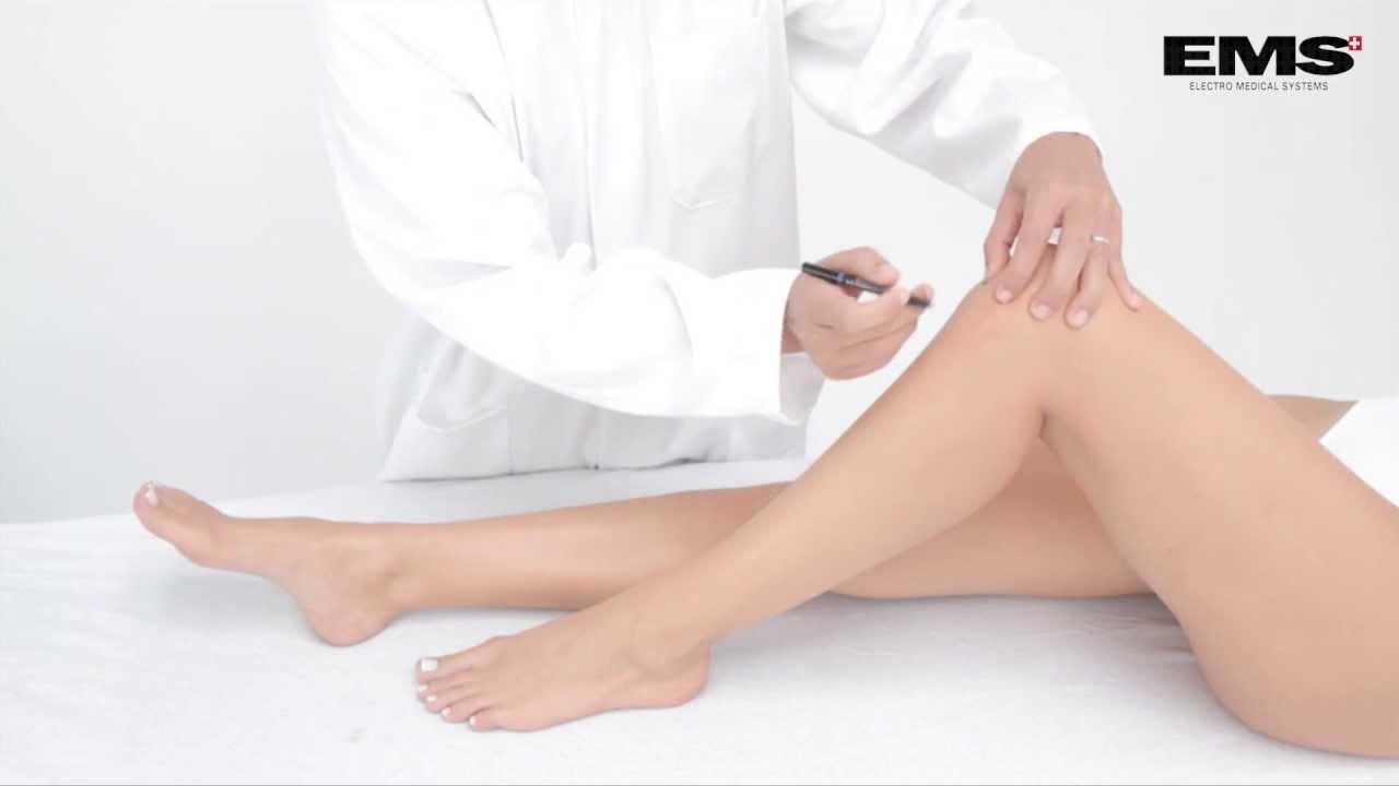 kenőcsök oszteokondrozis kezelésére ödéma kezelése artrózissal