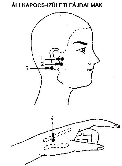 fáj csuklóízület