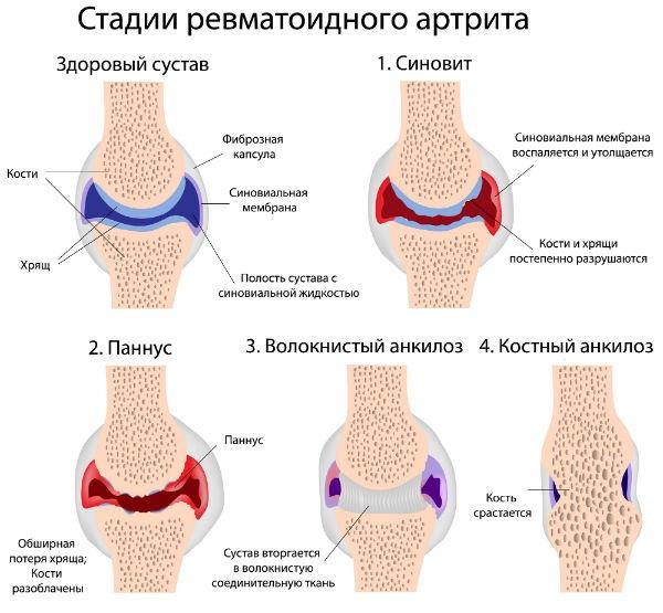 mi a rheumatoid arthritis és hogyan kell kezelni