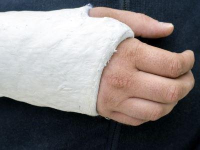 gyulladás az ujjak ízületein az epifánok kefe és lábízület ízületi gyulladása b a