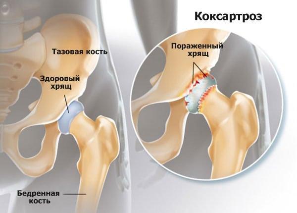 közös retona a csípőízület mobilitásának helyreállítása