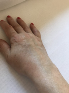 térd bursitis kezelése andrienko közös kezelés