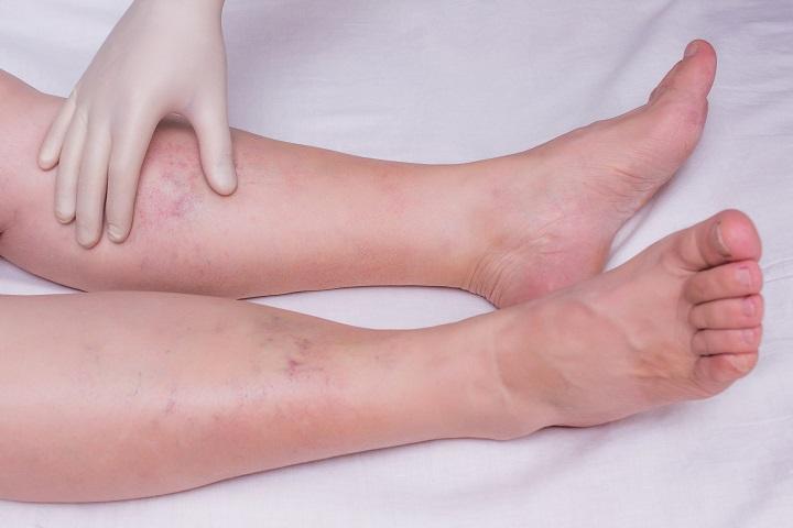 hogyan lehet kezelni a lábak ízületi gyulladását