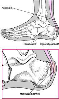 a lábujjak ízületeivel kapcsolatos problémák