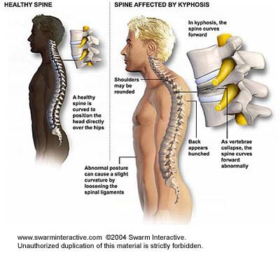 Népi gyógyszerek a nyaki gerinc artrózisának kezelésére