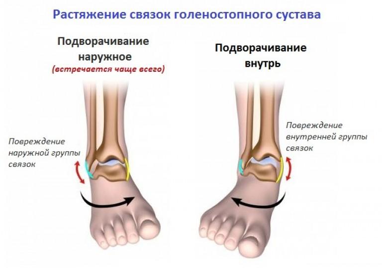 a bokaízület ragasztásainak károsodása 1-2 fokkal