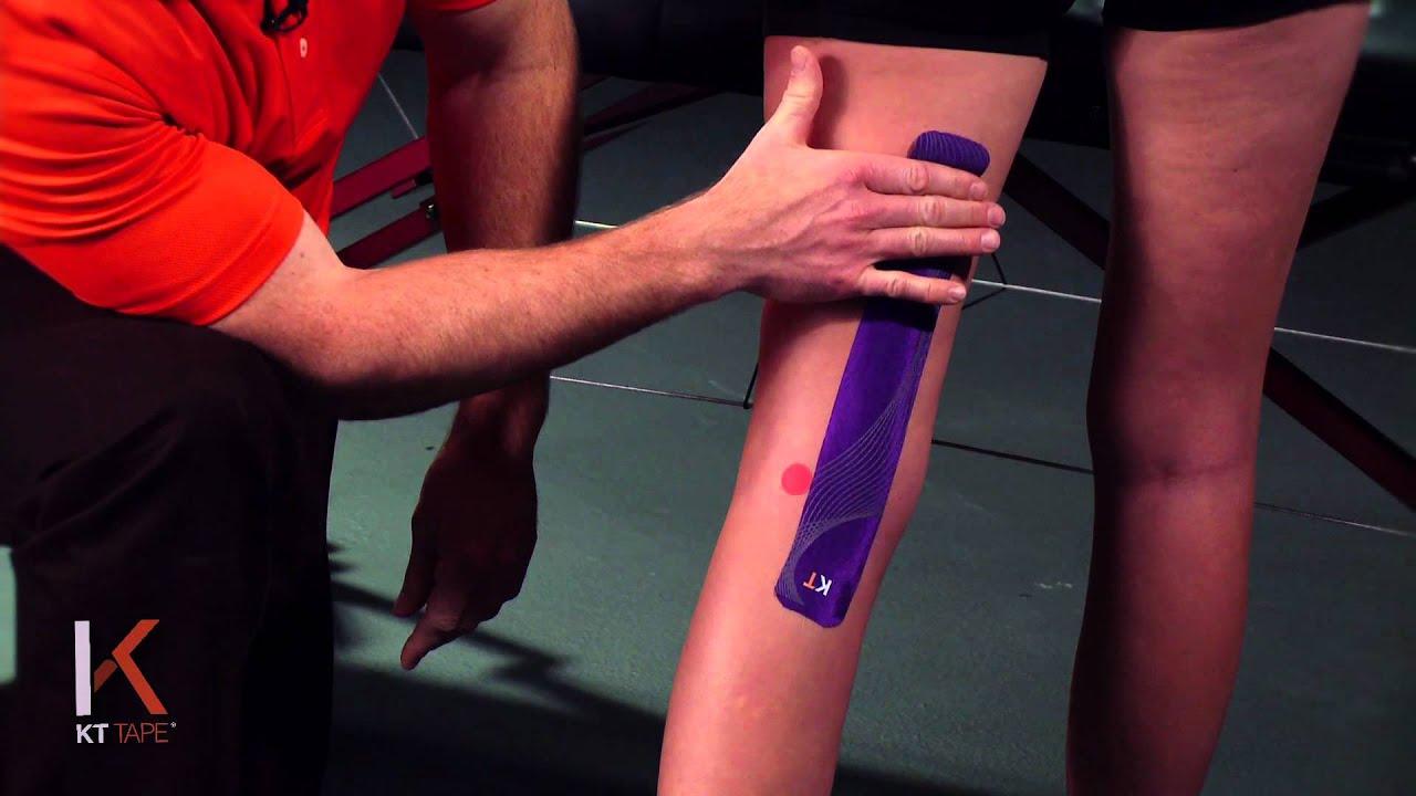 könyökcsigolya-sprain kezelés