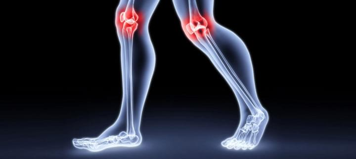 hogyan lehet megállítani a térdízületi fájdalmakat