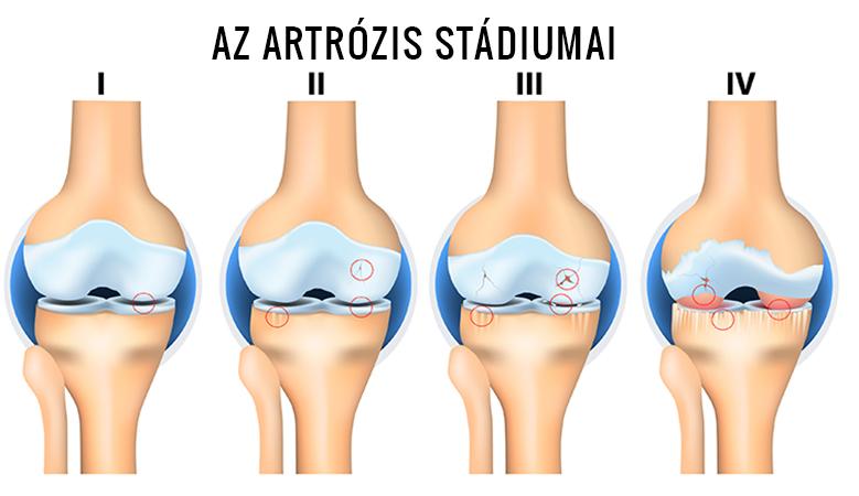 a lábízület fájdalmának kezelése boka sérülése hipotermiából