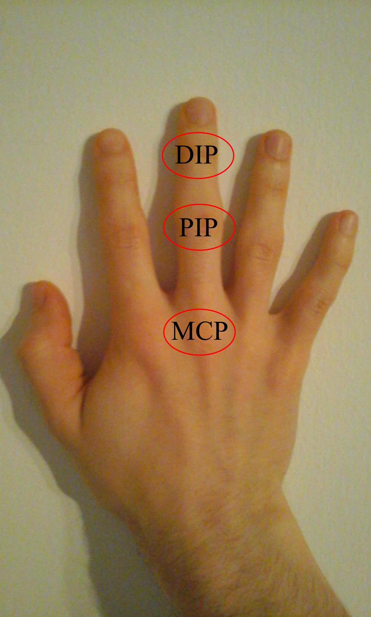fáj a bal kéz középső ujján lévő ízület fertőzések fájnak ízületeket