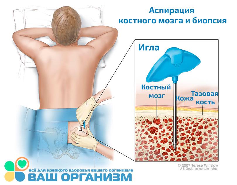 A prosztatitis hatása a gyümölcsre Prostatitis Afala