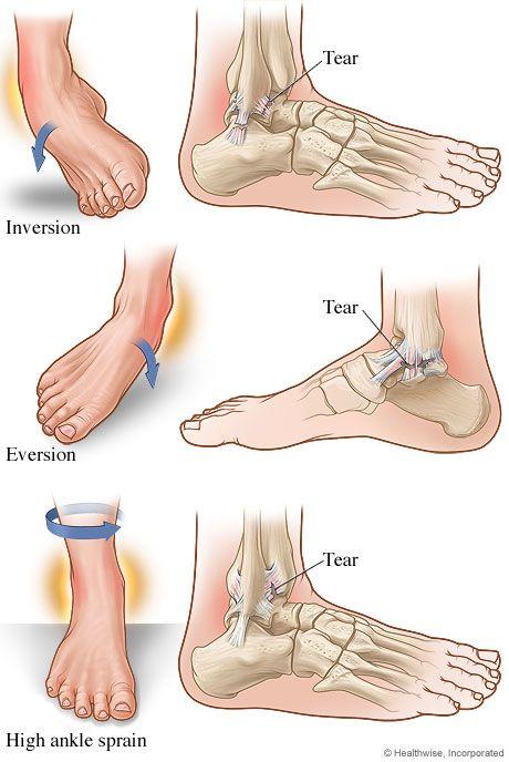 ín- és ligamentum boka betegség vízízületi fájdalom