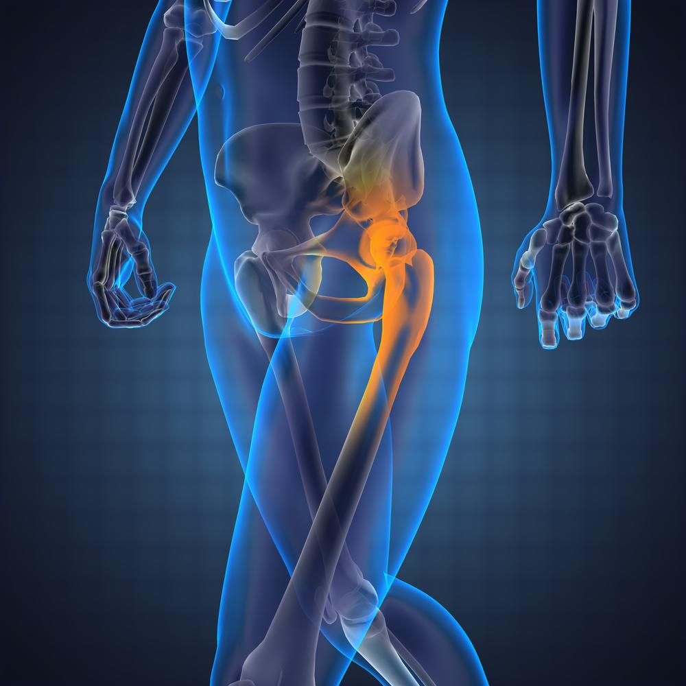 miért a csípőízület fájdalma