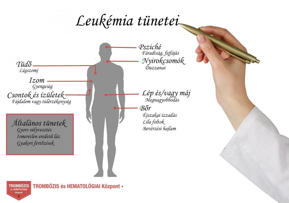 leukémia és ízületi fájdalmak ízületek és gerinc komplex kezelése