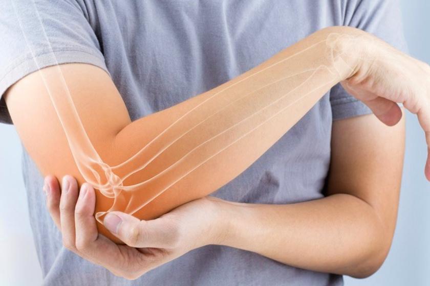Könyök fájdalom duzzanat - Hogyan kezeljük az ízületeket reuma