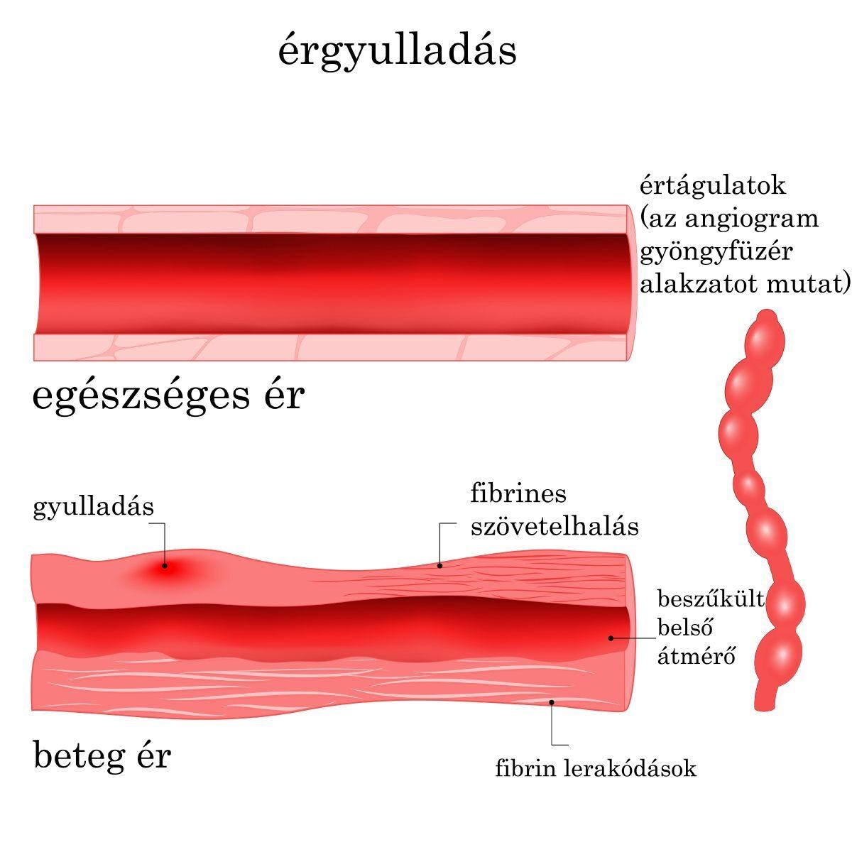 mit jelent a kötőszöveti betegség kenőcs a térd artrózisáról