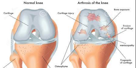 a térd artrózisának gonarthrosisának kezelése