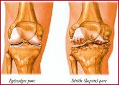 tabletták a térdízület fájdalomcsillapítására csípőfájás, hajlítás