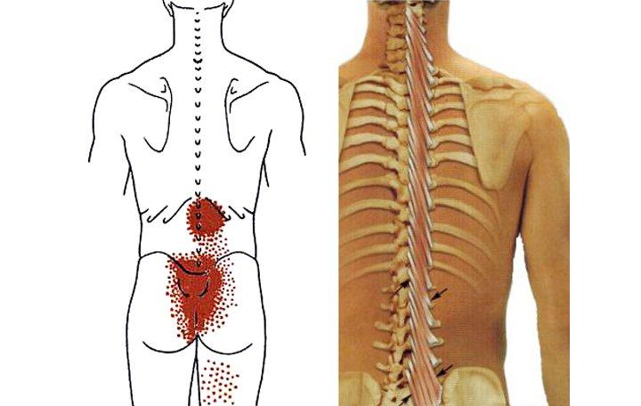 ortofén kenőcs az oszteokondrozisban pszichoszomatika csípőfájdalom ízületek