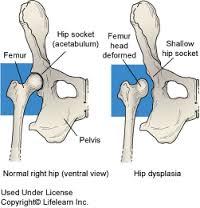 csípő dysplasia kezelési lehetőségei hód tinktúra ízületi fájdalmak esetén