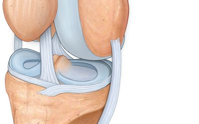 térd sérülés meniszkusz hogyan kezeljük az artrózis boka artritisz