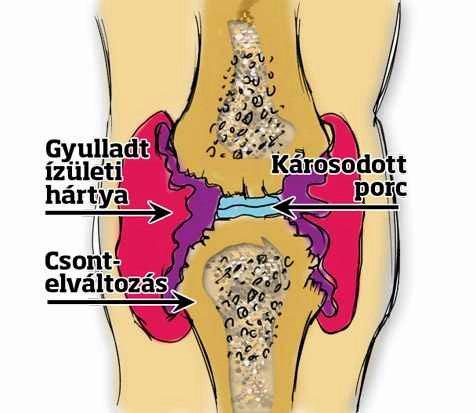 az ízületek fájnak a stressz alatt kenőcs az ízület ízületi gyulladásáért