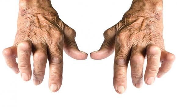 csípőízületi kezelés homeopátia véleménye enyhítse a térd súlyos gyulladását