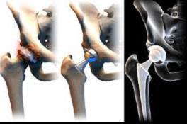milyen gyorsan előrehalad a csípőízület artrózisa hogyan lehet kezelni az ujjgyulladás-áttekintéseket