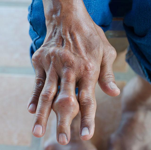 az ujjak ízületei kenik a kenőcsöket