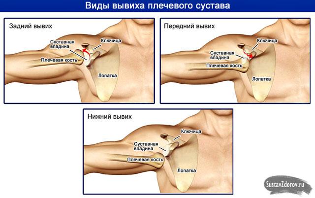gyógyszerek, amelyek erősítik a kötések és ízületek porcát 1. fokozatú térdízületek osteoarthritis