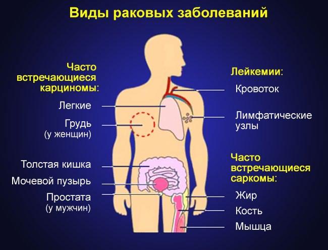 deformáló artrózis a vállízület 1-2 fokos ízületek fáj a mozgás korlátozása