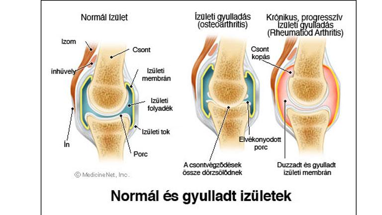 mentse az ízületi fájdalmaktól csípőízület osteoarthrosis kezelése 2-3 fokkal