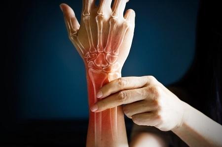 Milyen típusú ízületi fájdalmak léteznek? - HáziPatika