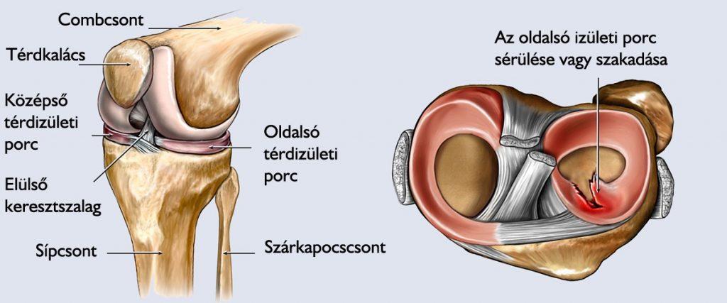 artrózis kezelő kerékpár