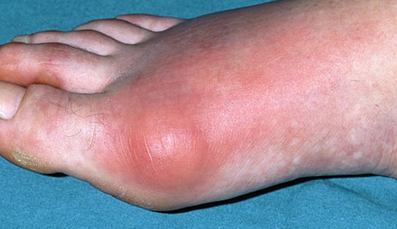 ízületi fájdalom duzzadt lábujj