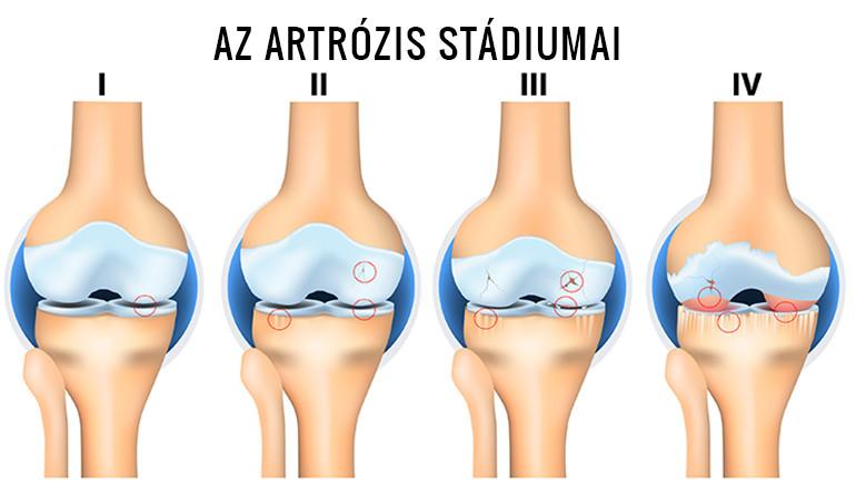 artrózis 3 fokú kezelés