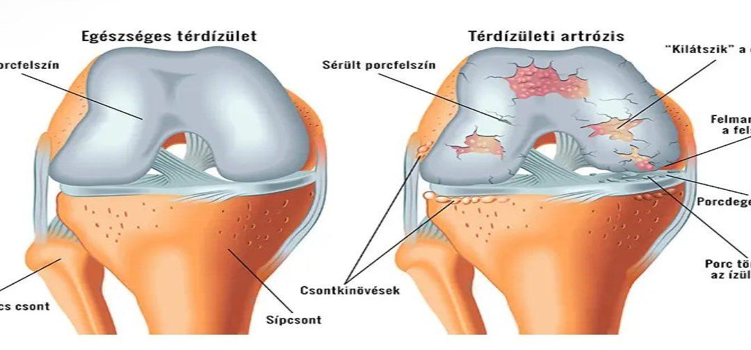 artrózis kezelő kerékpár tabletták a térdízületből
