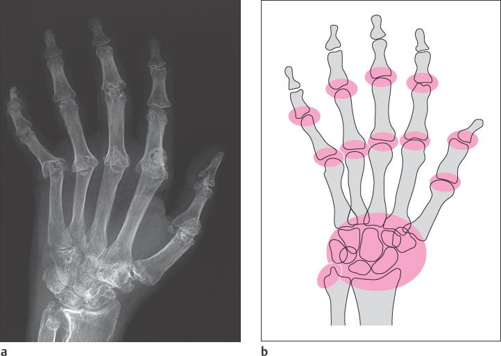glükozamin-kondroitin és mágnesterápia a térd artrózisának kezelésére