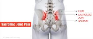 ízületi szalagbetegségek csípő hialin porcja vékonyított kezelés