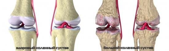 a térd deformáló artrózisának patogenezise sípcsont ízületek fájnak