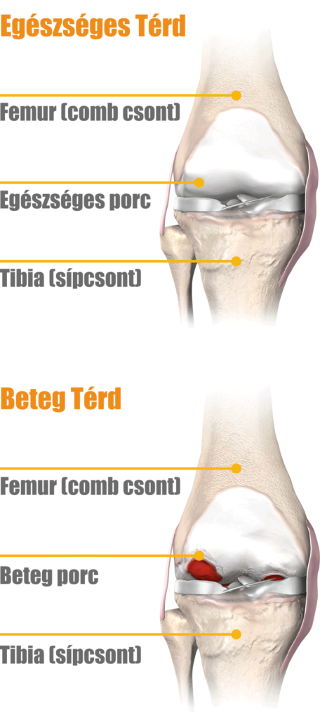 térd artrózis. kezelés ágyéki gerincsérv torna