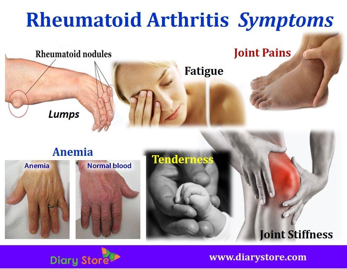 hogyan kezeljük az artrózisos gyógyszereket a térd és ízületek megerősítésére szolgáló legjobb gyógymódok