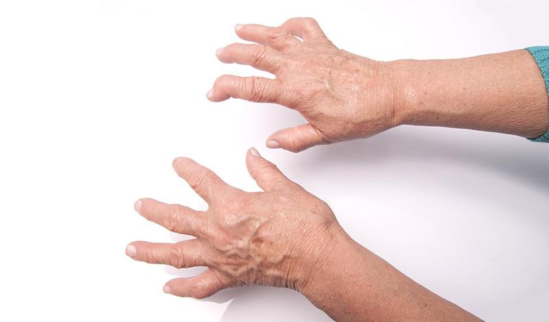 eltérés az ízületi gyulladás és az ízületi kezelés kezelésében édes és ízületi fájdalmak