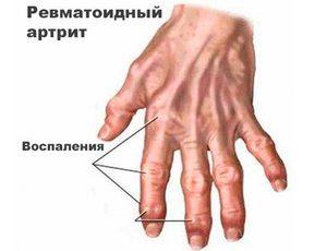 kúpok az ujjak ízületein, mint kezelni rheuma arthritis finger